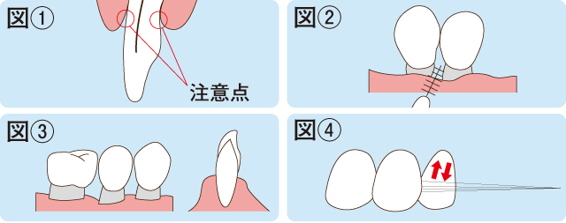 ライフステージに沿った予防とケア 壮年期~歯の喪失期~